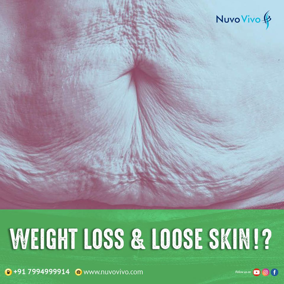 Weight loss & Loose skin