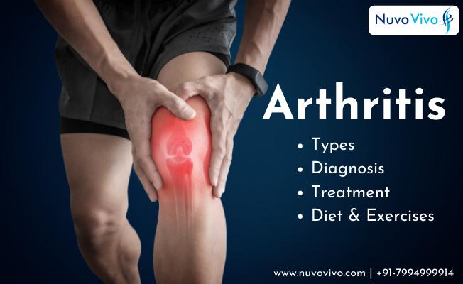 Best Arthritis Diet & Exercise Kochi